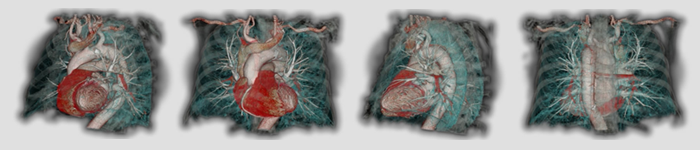 Toshiba Medical Research Institute USA medical scan images of various parts of the human body